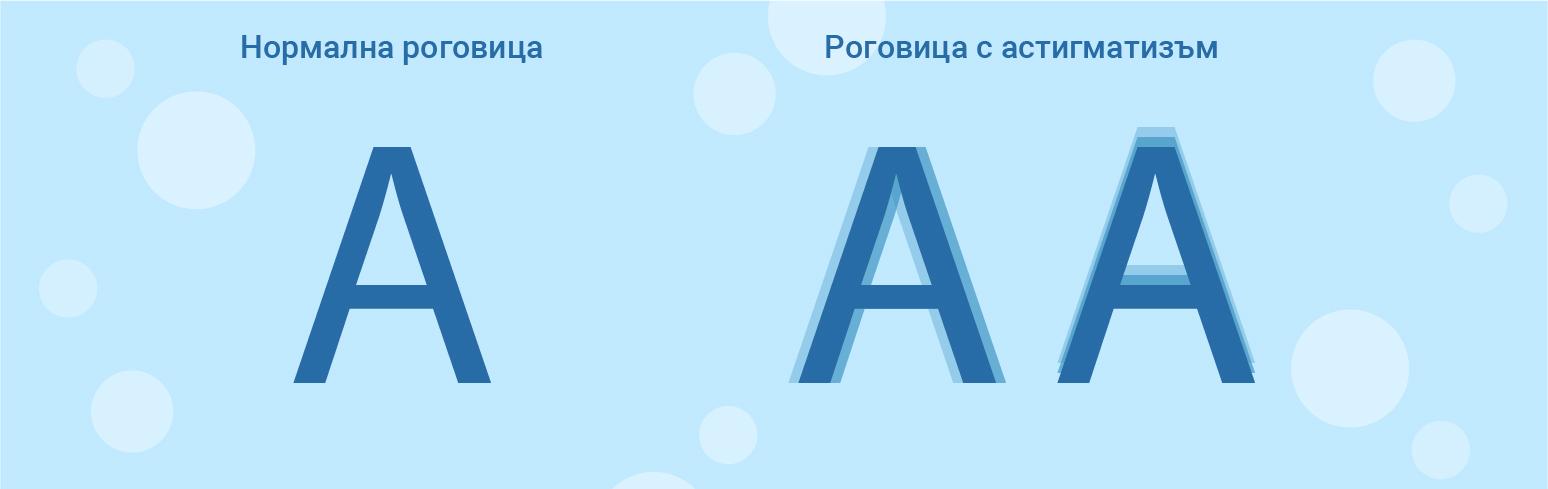 нормална и астигматична роговица